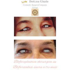 Blefaroplastica - Dott.ssa Federica Giuzio
