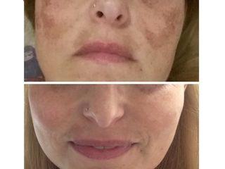 Macchie della pelle prima e dopo