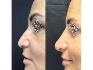 Rimodellamento naso pre e post
