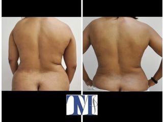 Liposuzione - Dr.ssa Truccolo Marialisa