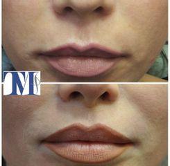 Filler labbra - Dr.ssa Truccolo Marialisa