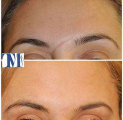 Cicatrici - Dr.ssa Truccolo Marialisa