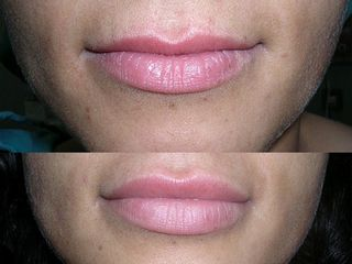 Lipofilling labbra prima dopo