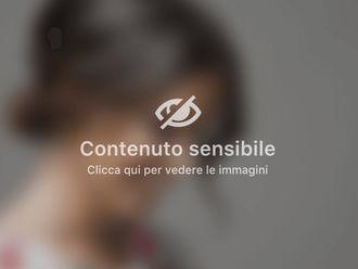 Ginecomastia - 308706