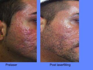 Laser co2 frazionato prima e dopo