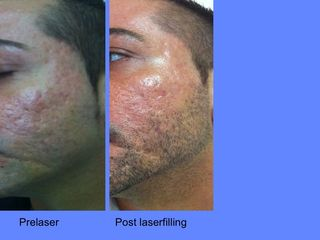 Esiti acne prima e dopo