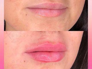 Lips Sculpture prima e dopo