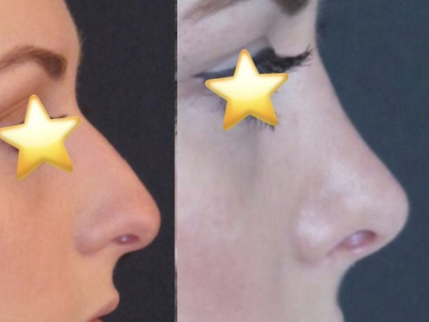 SCEB Salento Chirurgia estetica benessere