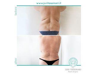 Liposuzione - 308597