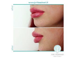 Filler labbra - 308640
