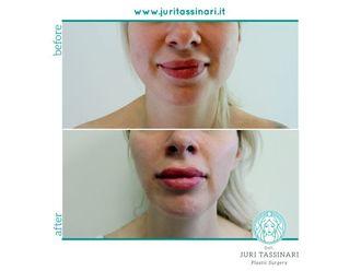 Filler labbra - 308641