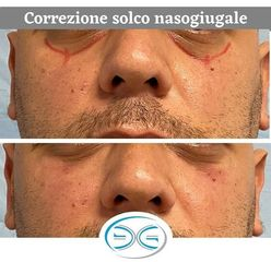 Eliminare occhiaie - Dott. Edoardo Garassino