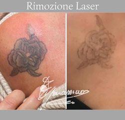 Rimozione tatuaggi - Dott. Edoardo Garassino