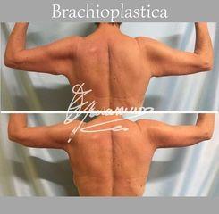 Braquioplastia - Dott. Edoardo Garassino