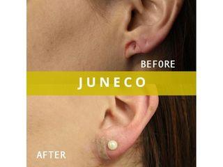 Chirurgia ricostruttiva prima e dopo