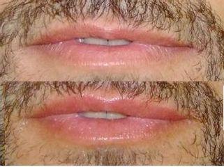 Rimodellamento labbra uomo