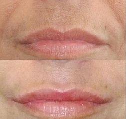 Rughe nasogeniene + Rimodellamento labbra