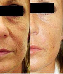 Rimodellamento viso prima e dopo