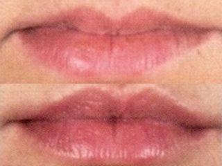 Rimodellamento labbra prima e dopo