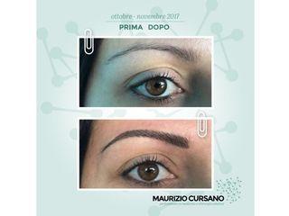 Dermopigmentazione prima e dopo