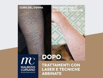 Rimozione tatuaggi-768767