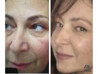 Rimodellamento ovale viso prima e dopo