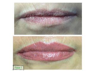Pigmentazione prima e dopo
