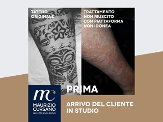 Rimozione tatuaggi prima e dopo