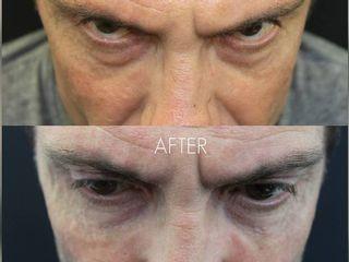 Ringiovanimento Contorno Occhi con Acido Ialuronico.