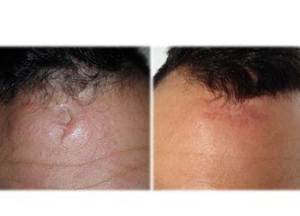 Esiti cicatriziali prima e dopo