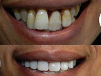 Dentisti-752425