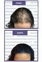 Tricopigmentazione - Adriano Dalla Riva