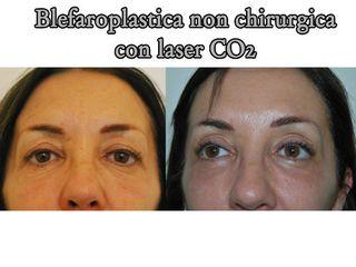 Blefaroplastica non chirugica prima e dopo