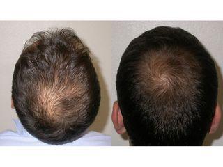 PRP capelli prima dopo