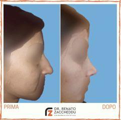 Rinoplastica - Dott. Renato Zaccheddu