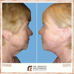 Lifting collo - Dott. Renato Zaccheddu
