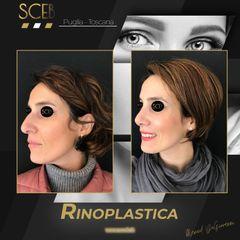 Rinoplastica - SCEB - Dott. Manuel De Giovanni