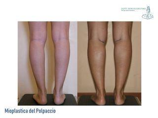 Mioplastica prima e dopo