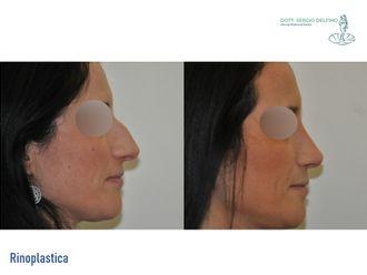 Chirurgia Estetica-771013