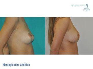 Mastoplastica additiva - Dott. Sergio Delfino