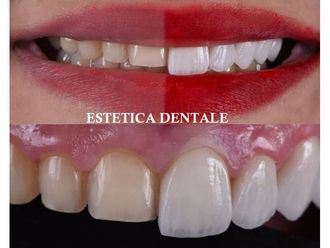 Dentisti-790979
