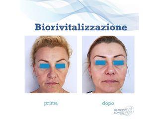 Biorivitalizzazione prima e dopo