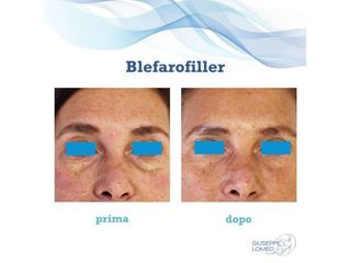 Blefarofiller prima e dopo