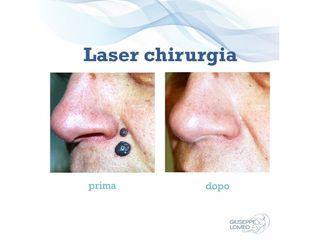 Laser chirurgia prima e dopo