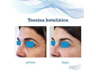 Botulino-770542