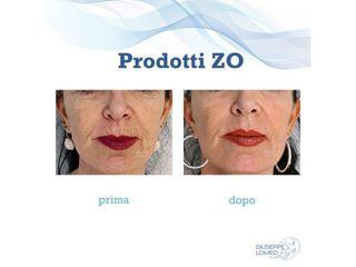 Prodotti ZO prima e dopo