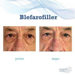 Blefaroplastica - Dott. Giuseppe Lomeo