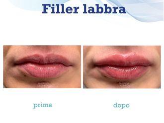Filler labbra-786168