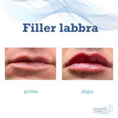 Filler labbra - Dott. Giuseppe Lomeo