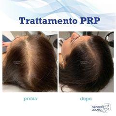PRP - Dott. Giuseppe Lomeo